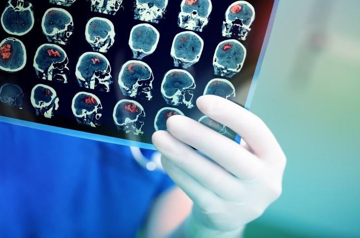 脳卒中ってどんな病気?